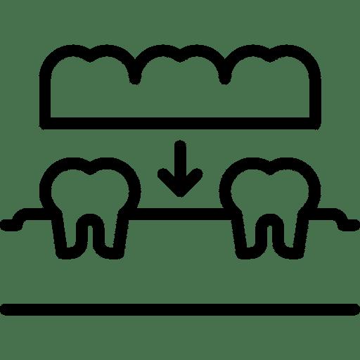 prótesis sobredentadura Clinica dental Valladolid